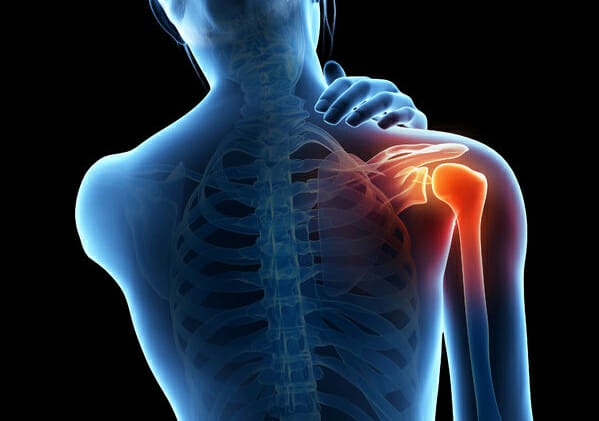 Thoracic Outlet Syndrome and Massage